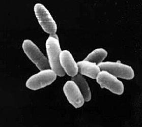Unikátní archeabakterie z mrtvého moře